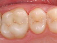 After CEREC Treatment