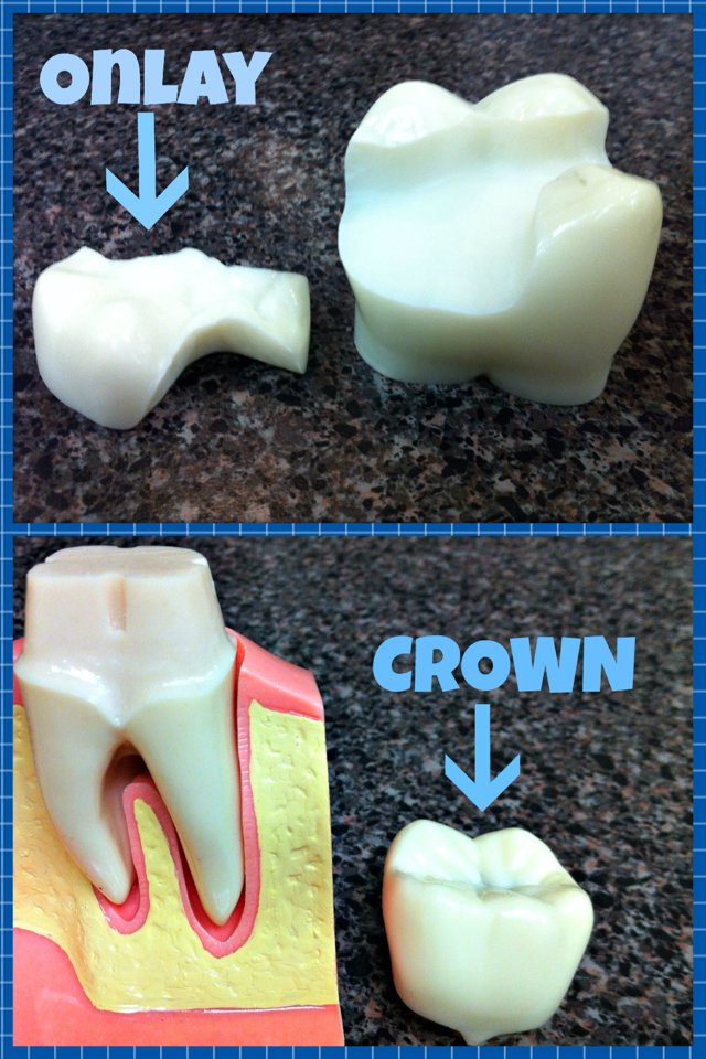 Onlays And Crowns Wainright Amp Wassel Dds